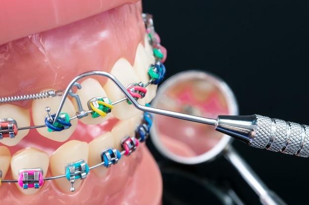Orthodontische model en tandarts tool - demonstratie tanden model van verschillende soorten orthodontie