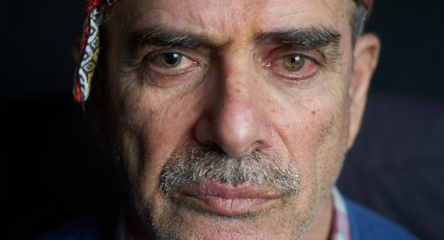 Oudere man met cataract ogen, close-up.