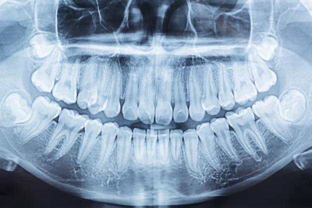 Panoramische tandröntgenstraal van een mond links en rechts.