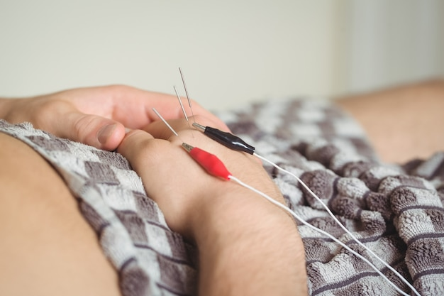 Patiënt die elektro droge needling bij de hand krijgt