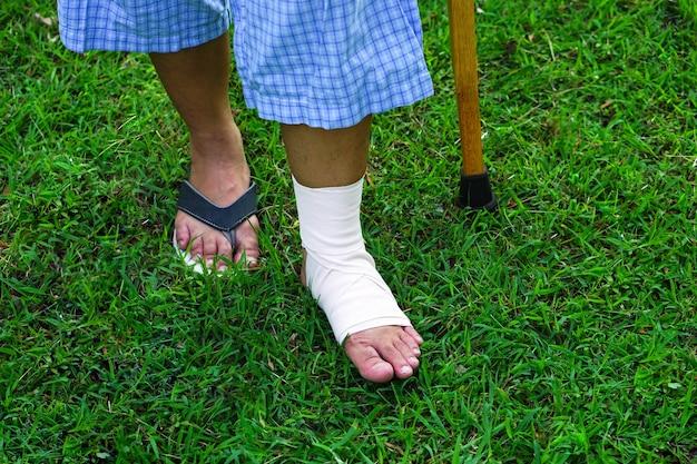 Patiënten met enkelblessures met bandages enkelbrace en krukken gebruiken ter ondersteuning op het gazon