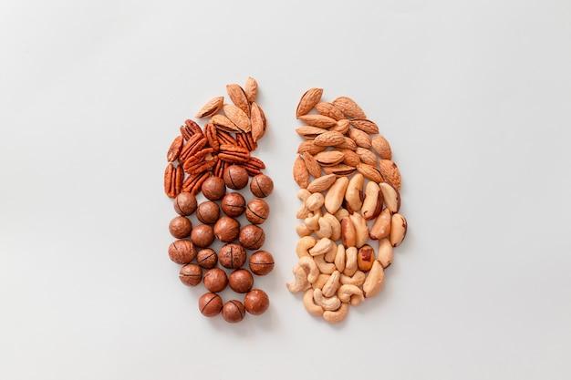 Pecannoten, paranoten, cashewnoten, amandelen en macadamianoten.