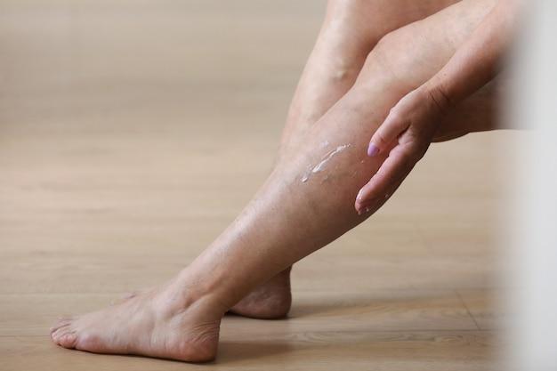 Pijnlijke spataderen en spataderen op actieve damesbenen, zichzelf helpend bij het overwinnen van de pijn