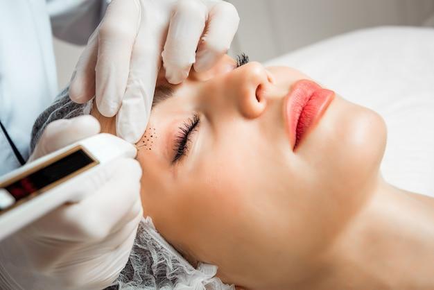 Plasma-coagulator voor gezichtsverjonging, aanscherping en gladstrijken van rimpels in het gezicht. mooie jonge vrouw in een schoonheidssalon.