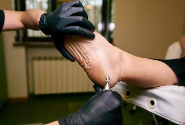 Podologie, behandeling van de getroffen delen van de voeten, medisch kantoor, pedicure