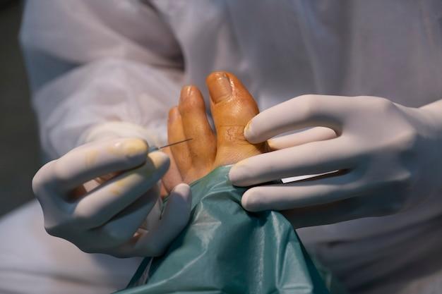 Podotherapeut arts onderzoekt de voet en bereidt een operatie voor