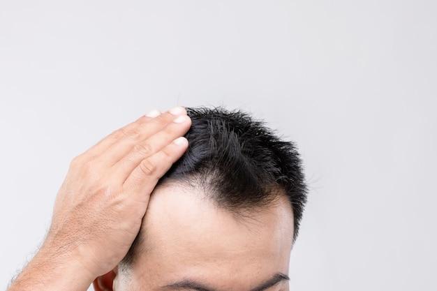 Portret aziatische man met zorg gevoel en aanraken op zijn hoofd om kaal hoofd of kaal probleem te tonen. studio shoot met kopie ruimte met grijze muur