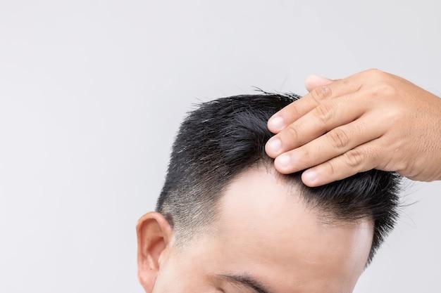 Portret aziatische man met zorg gevoel en aanraken op zijn hoofd om kaal hoofd of kaal probleem te tonen
