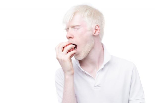 Portret van een albinoman die een appel eet