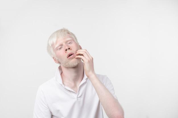 Portret van een albinomens in studio geklede die t-shirt op een witte achtergrond wordt geïsoleerd. abnormale afwijkingen. ongewoon uiterlijk. huidafwijking