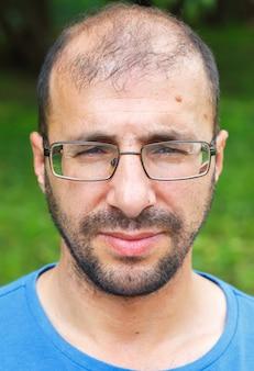 Portret van een jonge man met slecht gezichtsvermogen en haaruitval.