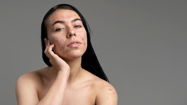 Portret van een jonge vrouw met acne
