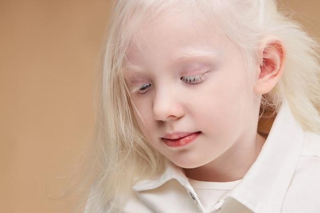 Portret van een klein kaukasisch meisje met het albinisme-syndroom close-up