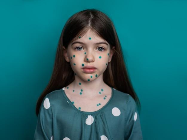 Portret van een meisje dat lijdt aan waterpokken op een groene achtergrond