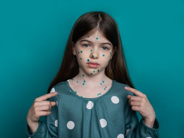 Portret van een meisje dat lijdt aan waterpokken
