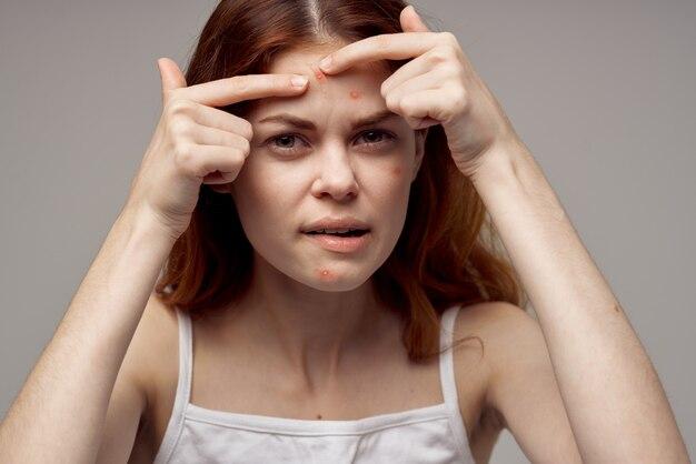 Portret van een vrouw knijpt een puistje op haar voorhoofd acne cosmetologie dermatologie