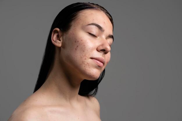 Portret van mooie jonge vrouw met acne