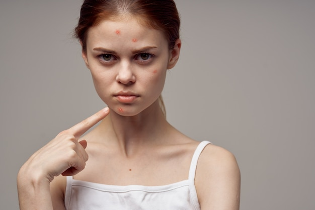 Portret van vrouw met huidproblemen