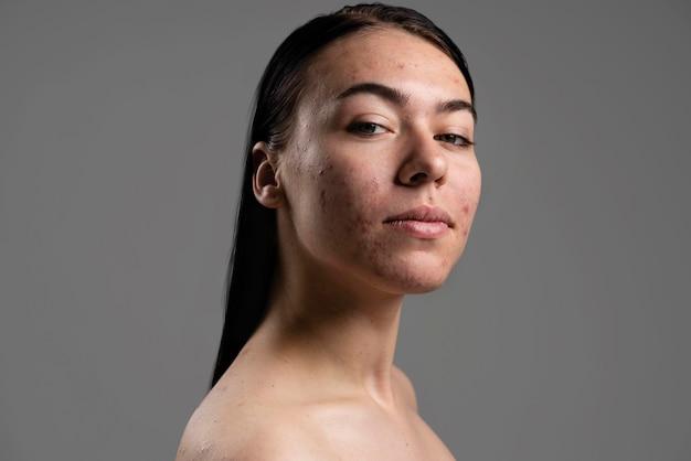 Portret van zelfverzekerde jonge vrouw met acne