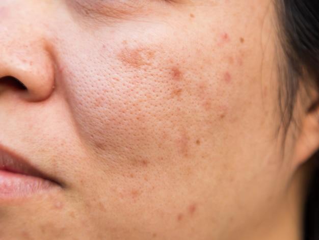 Problemen met de gezichtshuid zijn acne en vlekken.