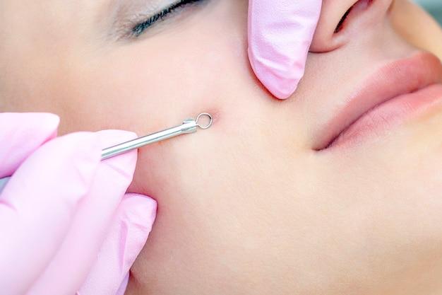 Procedure voor het reinigen van de huid van het gezicht met een stalen apparaat met een lepel mee-eters en acne