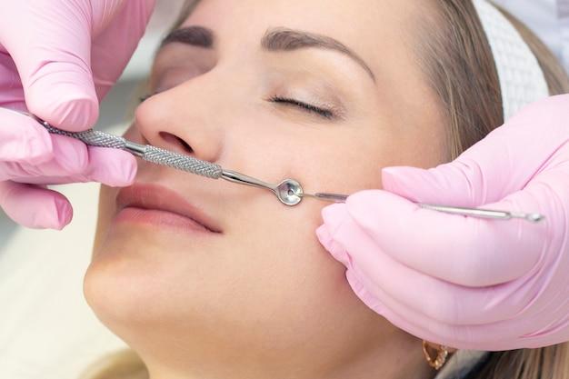 Procedure voor het reinigen van de huid van het gezicht met een stalen apparaat met een lepel tegen mee-eters en acne.