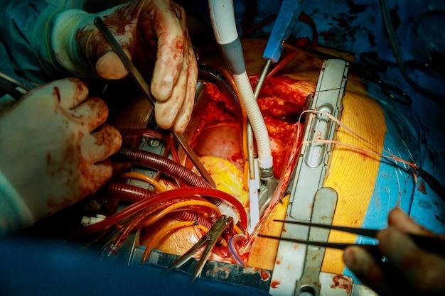 Proceschirurgie van operatie met behulp van medische apparatuur in de operatiekamer