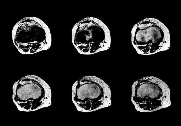 Professionele arts mri- en ct-scan xray-beelden