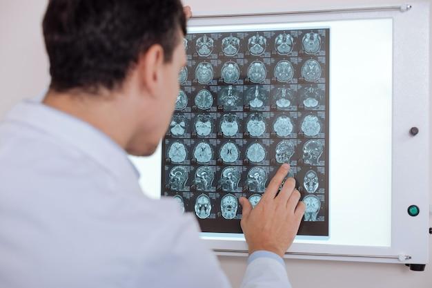 Professionele ernstige mannelijke arts die voor het beeld van de z-ray staat en ernaar kijkt terwijl hij een diagnose stelt