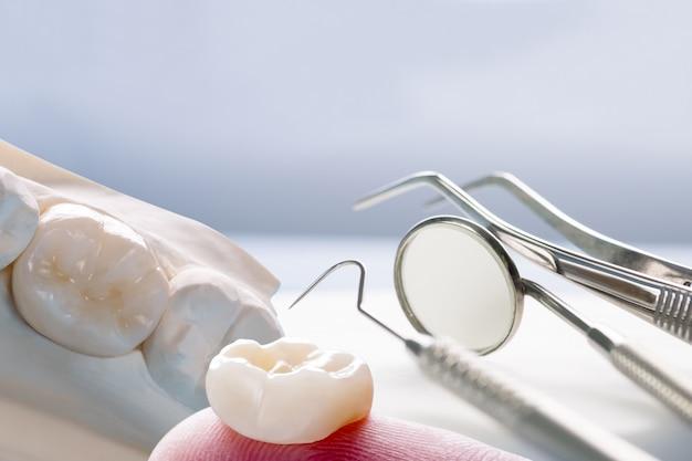 Prosthodontie of prothese