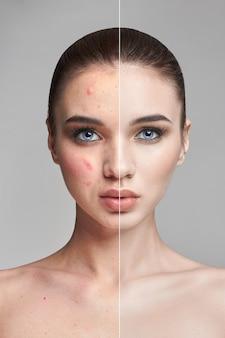 Puistjes en acne op vrouwengezicht voor en na