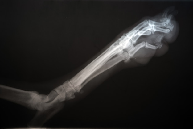 Radiografie van een hondenpoot. echt x-ray beeld van een gewonde hond poot.