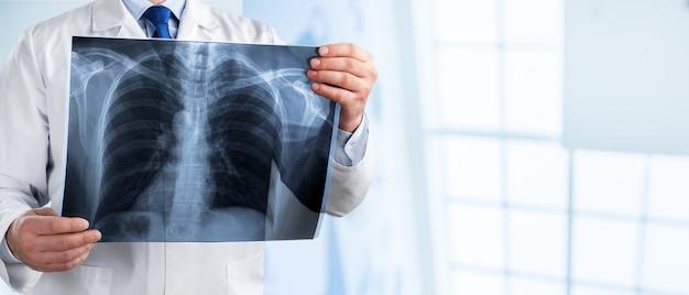 Radiologie arts onderzoekt op thoraxfoto van een patiënt in de ziekenhuiskamer