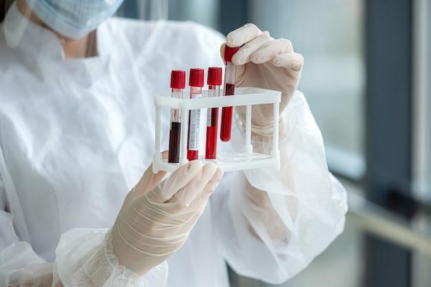 Reageerbuis met bloed van de patiënt in de handen van een verpleegster