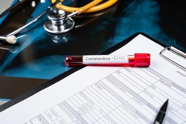 Reageerbuis met coronavirus-test op de werkplek van de arts. tegen de achtergrond van een röntgenfoto van de longen, een stethoscoop