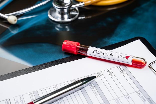 Reageerbuis voor een nieuw coronavirus 2019-ncov-bloedonderzoek. wuhan, china. coronavirus bloedonderzoek concept