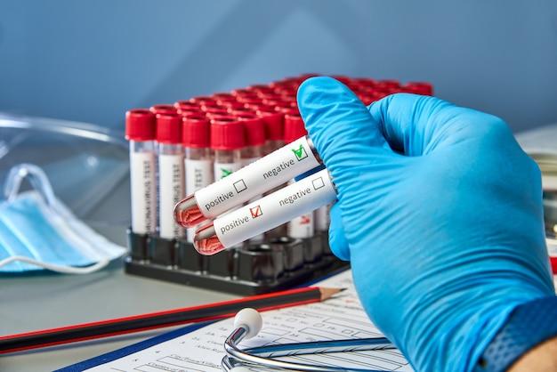 Reageerbuisjes in de hand van de dokter met een positief en negatief bloedmonster voor covid-19.