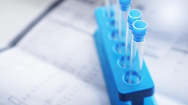 Reageerbuisjes op een blauwe standaard tegen een achtergrond van wazige vellen met testresultaten. chemische laboratoria concept.