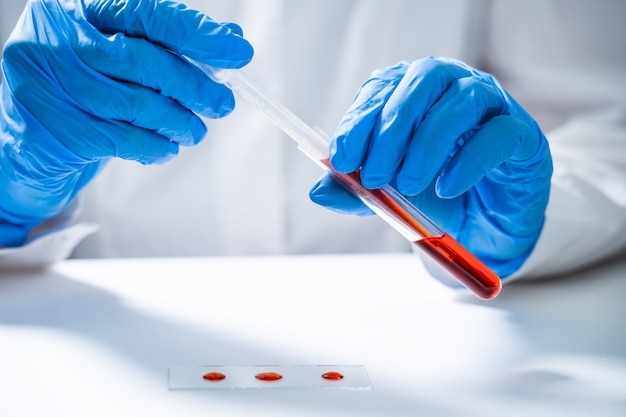 Reageerbuizen met bloed in laboratorium.