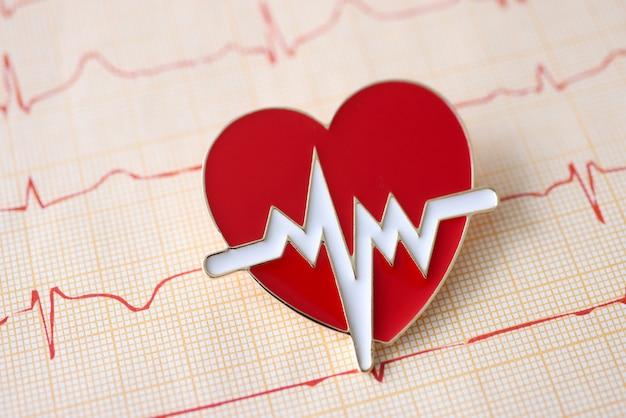 Resultaat van elektrocardiogram met pictogram ligt op tafel