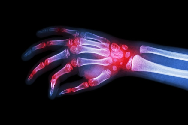 Reumatoïde artritis, jichtartritis (filmröntgenhand van kind met artritis bij meervoudig gewricht)