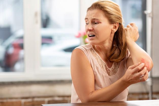 Rijpe aangename blondharige vrouw die zich ziek voelt met uitslag en krassen op het lichaam