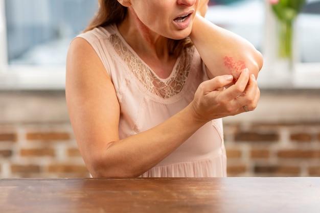 Rijpe huisvrouw met sterke allergie die bij de tafel staat en uitslag op de elleboog heeft
