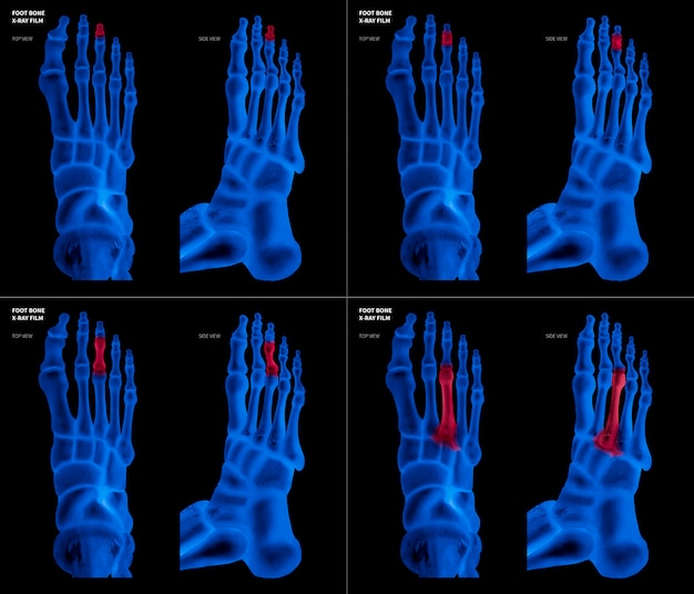 Röntgenblauwe film van middelste teenvoetbeen met rode highlights op verschillende pijnpunten en gewrichtsgebieden