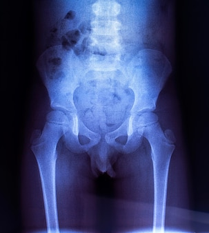 Röntgenfoto van de bekkenbeenderen van het kind.