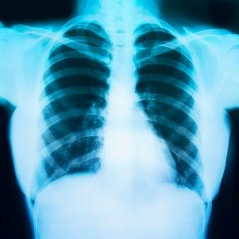 Röntgenfoto van de borst van een patiënt