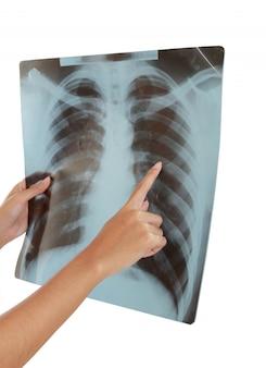 Röntgenfoto van een menselijke thorax.