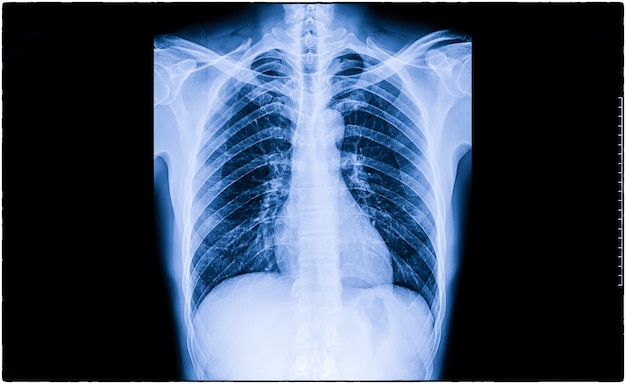 Röntgenfoto van een patiënt met primaire longkanker in zowel de rechter als de linker lob van de long.