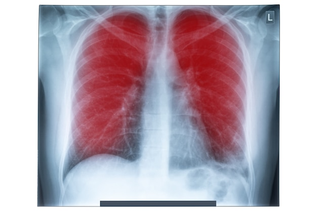 Röntgenfoto van menselijke borst voor medische diagnostiek.
