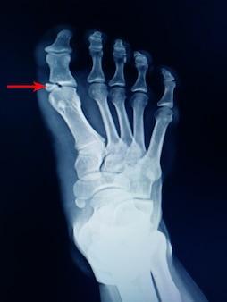 Röntgenfoto van voetbreuk